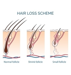 Hair loss scheme vector