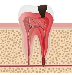 Infected tooth vector