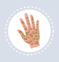 Psoriasis shin disease human palm icon healthcare vector