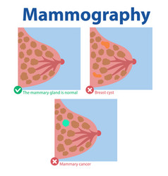 Mammography results medical vector