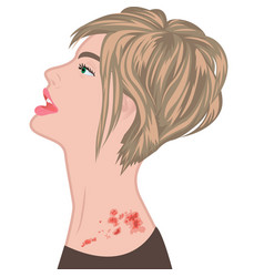 Shingles on a woman shoulder varicella zoster vector