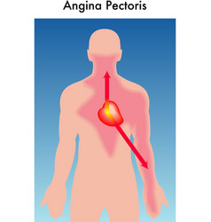Angina Pectoris vector image
