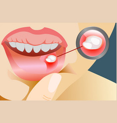 Aphtha with magnifying glass on lip close up vector