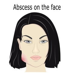 Abscess on the face vector image vector image