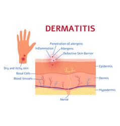 Dermatitis graphic diagram or scheme flat style vector