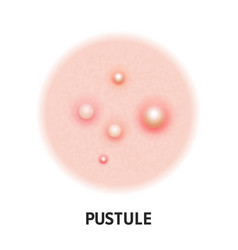 Pustule skin acne type icon skin disease acne vector