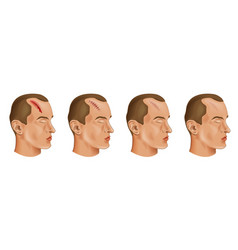 Cut head wound vector