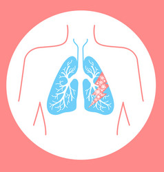 Icon of lung disease hit vector