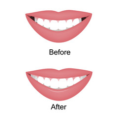 Smile with large and dark buccal corridor vector