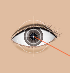 of laser vision correction vector image vector image