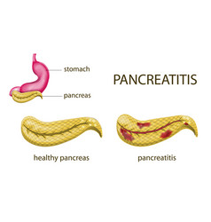 Gaster and pancreatitis vector