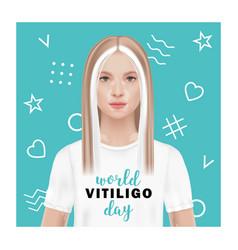 world vitiligo day a woman vector image