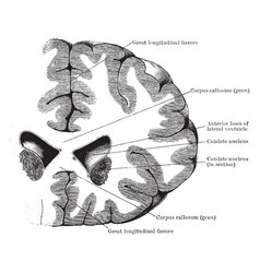 Section through lateral ventricles vintage vector