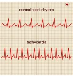 - Heart beats cardiogram vector image
