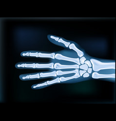 Realistic 2d x-ray hand dark medical image vector