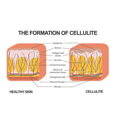 Formation cellulite cellulite occurs vector