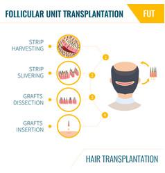 Hair transplantation fut method in men vector
