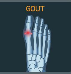 gout logo icon vector image vector image