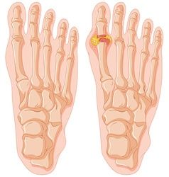 Diagram of gout in human toe vector