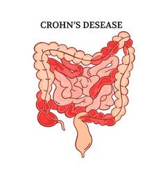Crohn desease intestines medicine anatomy i vector