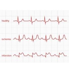 Heart cardiogram charts set Healthy heart vector image