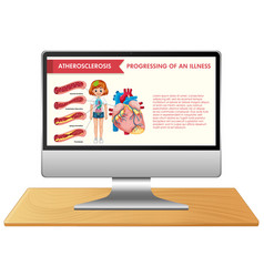 Computer with science infographic on screen vector