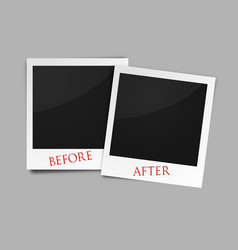 Before and after photo frames vector