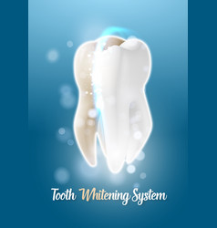Teeth cleaning healthcare stomatology procedure vector