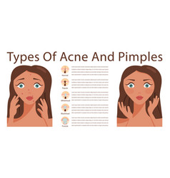 Skin acne problems vector