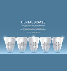 dental braces poster banner design template vector image