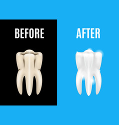 Teeth whitening before and after card poster vector