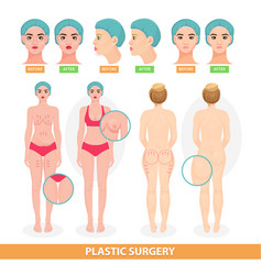 plastic surgery patient woman before vector image
