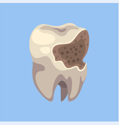 Unhealthy tooth with caries dental problems vector