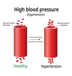 Hypertension high blood pressure two blood vector