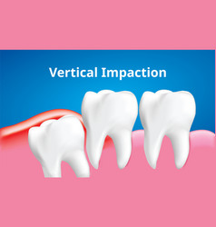 Wisdom tooth vertical impaction with vector