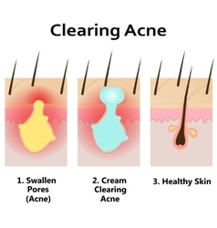 clearing skin from acne vector image vector image