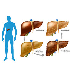 Stages of liver damage vector