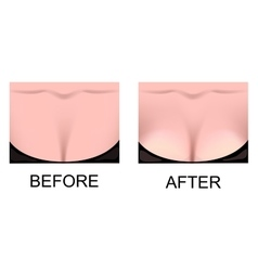 breast augmentation plastic surgery vector image
