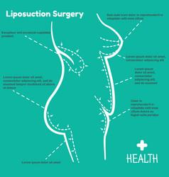 Liposuction surgery vector