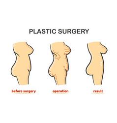 Plastic surgery process vector