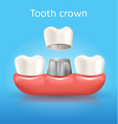 Tooth crown realistic dental poster vector