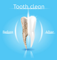 Tooth cleaning realistic dental concept vector