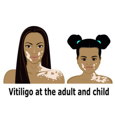 Vitiligo at the adult and child vector