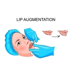 Lip augmentation injection vector