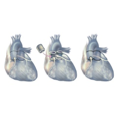 Heart surgery valve replacement vector image
