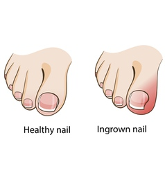 Ingrown nail vector