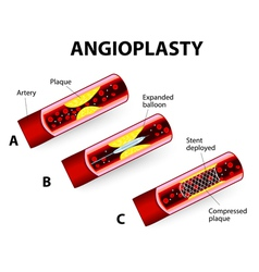 angioplast vector image