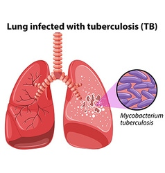 Lung infected with tuberculosis vector image