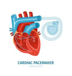 heart pacemaker vector image