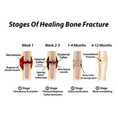 Stages of healing bone fracture formation of vector